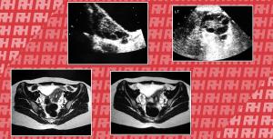 Синдром полікістозних яєчників: візуалізація та сучасні аспекти діагностики. - Новини RH
