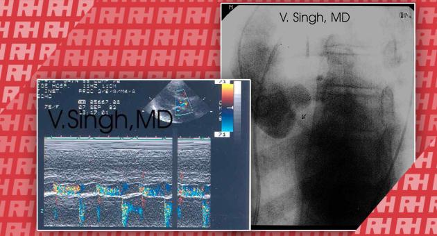 Ультразвукова візуалізація аортальної регургітації - Новини RH